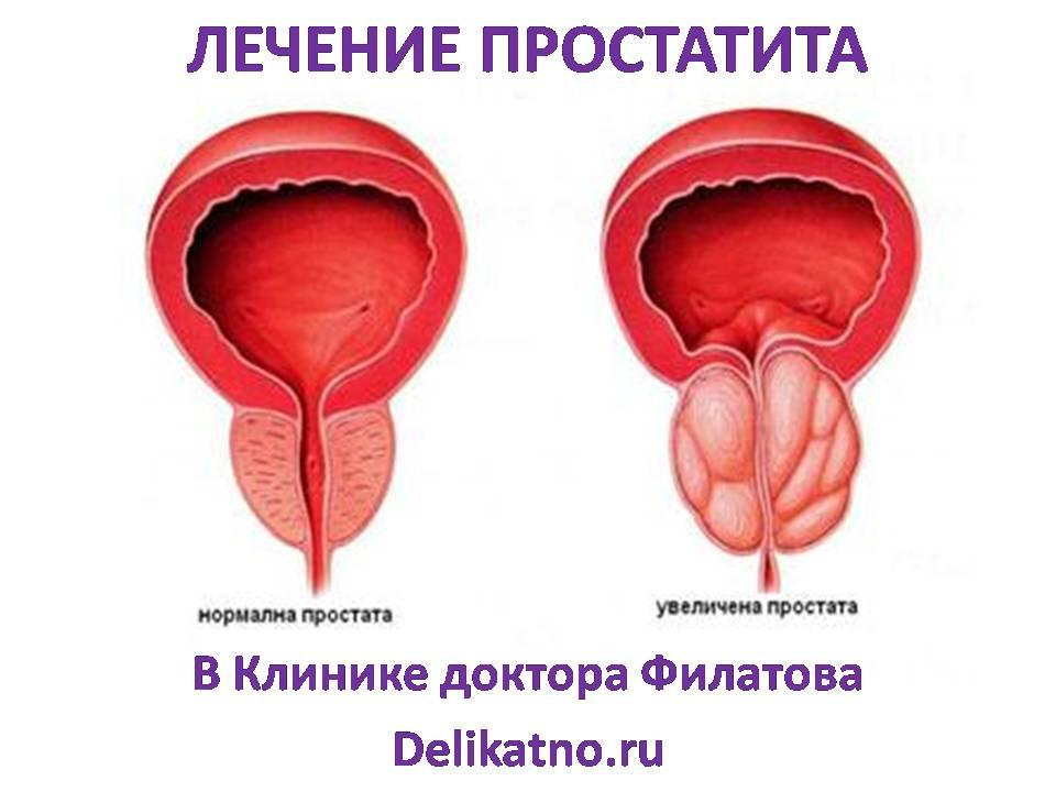 Передовое лечение простатита