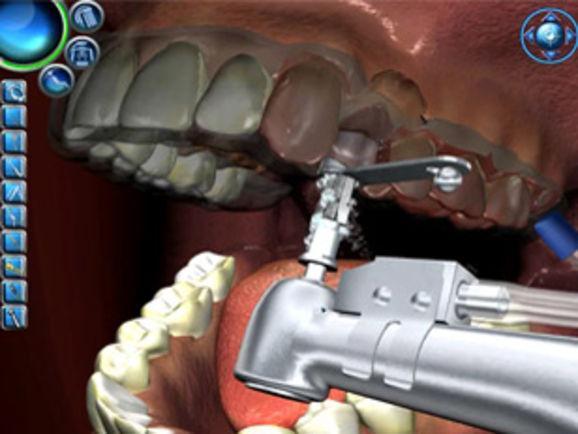 Установить зубной имплант цена